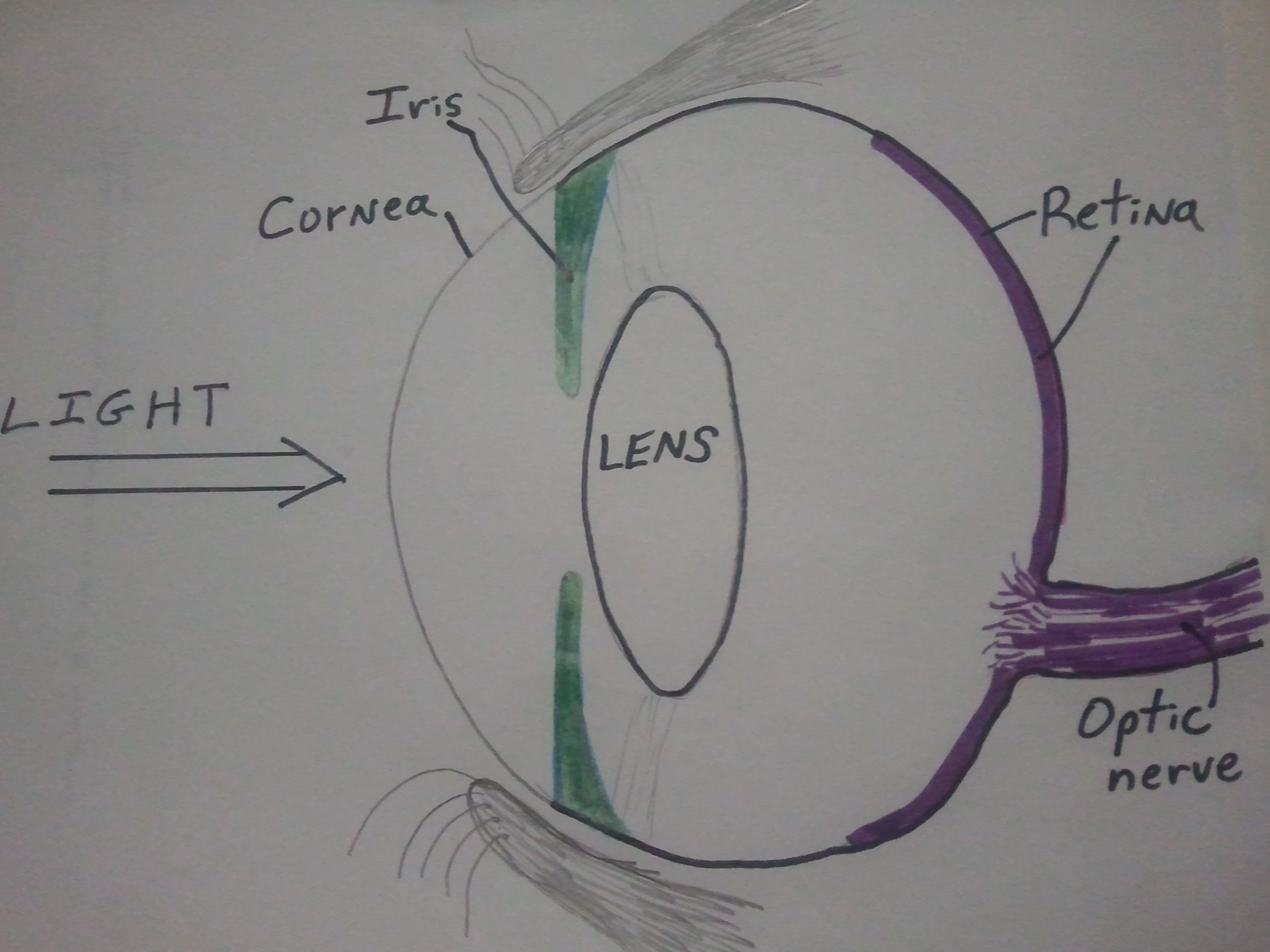 most blinds blindness cataracts can the eye vladimirfloyd cause common problems moreland eyecare